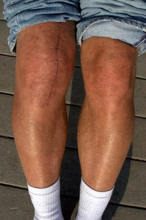Runner's knee: Recovery time and pain management
