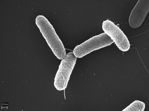 Salmonella poisoning review
