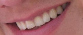 Save your smile with exclusive teeth whitening kits