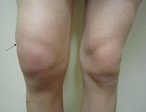 Sharp knee pain
