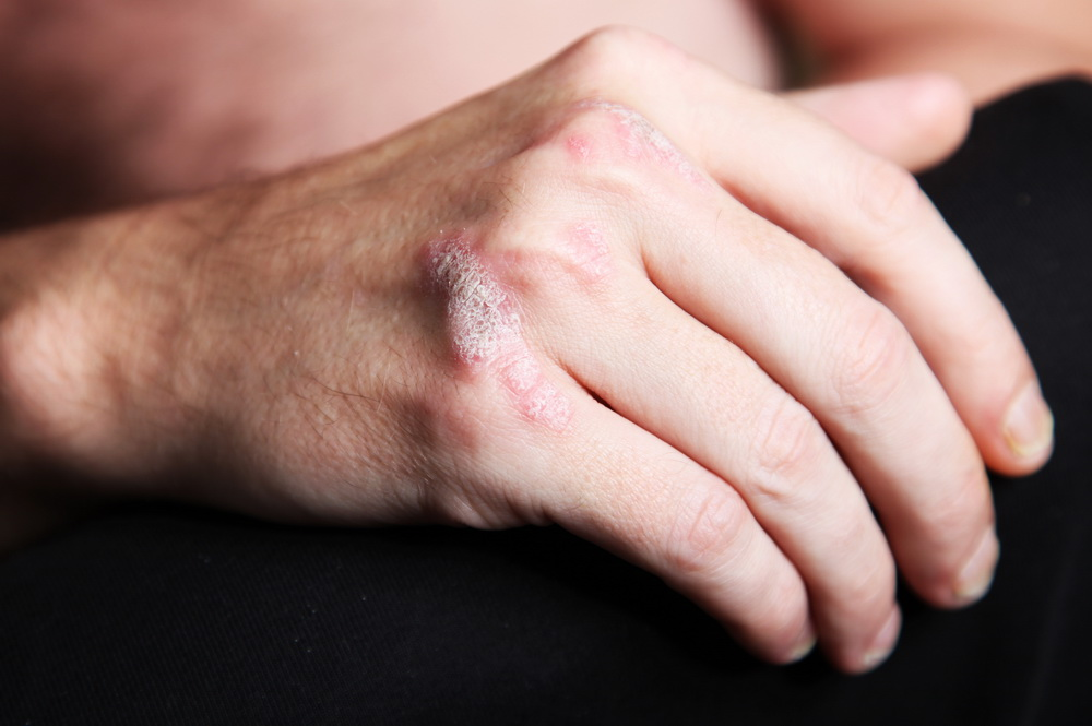 Here are ten of the most common psoriasis triggers and how to avoid them 2