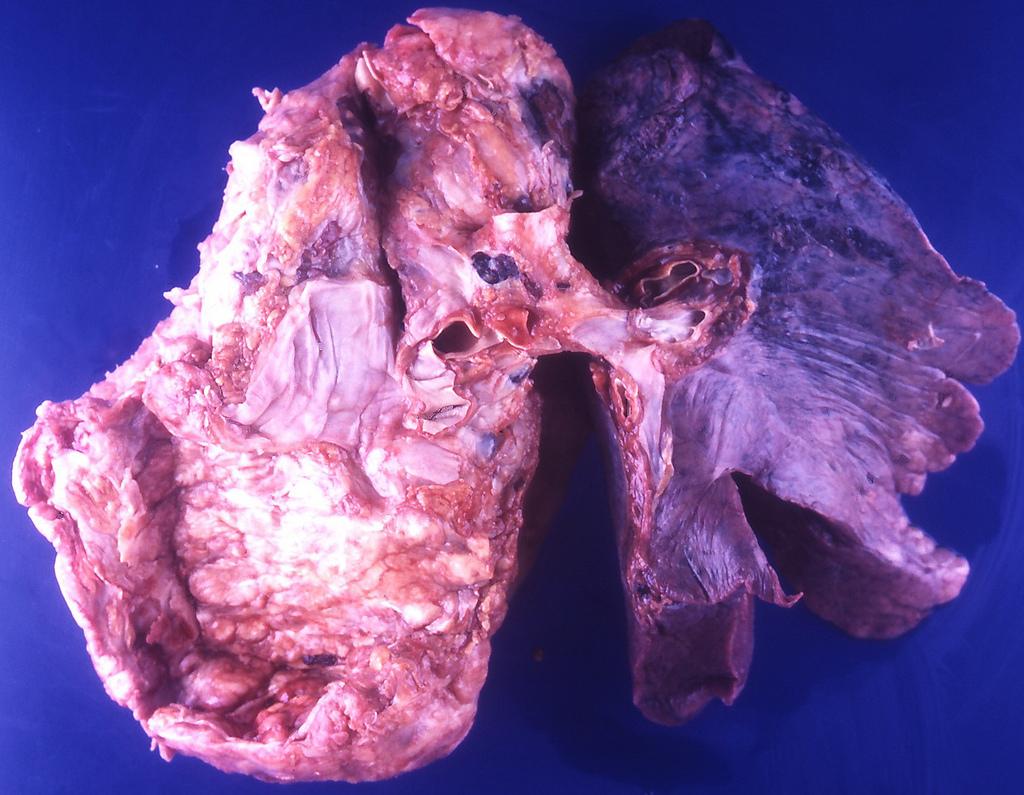 small-lung-carcinoma.jpg