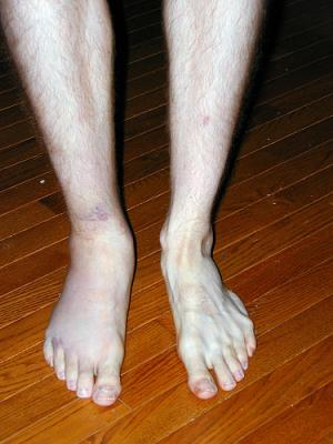 Sprained ankle causes and symptoms