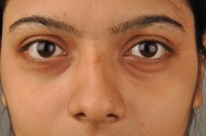 Swollen under eye causes