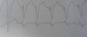 Tachycardia after eating