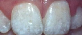 how to use temporary tooth filling
