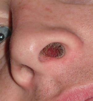 The nasal problem begins with post nasal drip