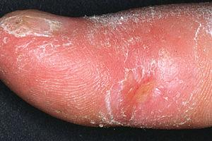 Therapy for systemic sclerosis