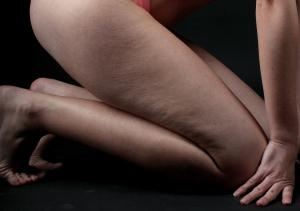 Thigh exercises for cellulite