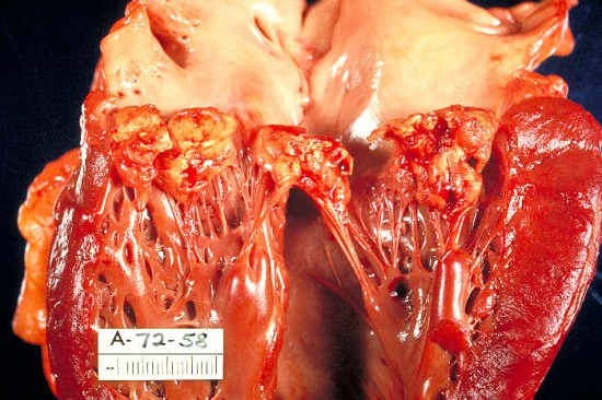 infective-endocarditis.jpg
