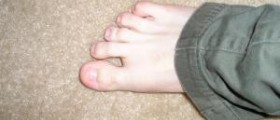 Toe pain causes