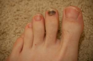 Toenail falling off - what to do