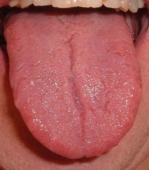 Tongue blisters causes and treatment