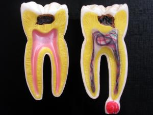 Tooth abscess review