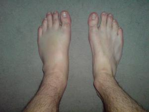 Torn ligament in ankle