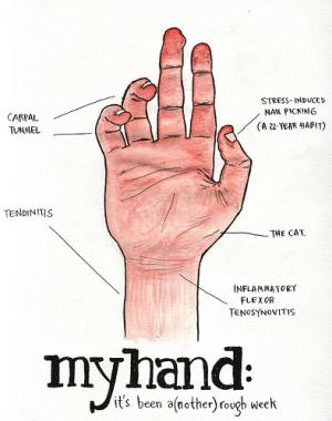 Treat carpal tunnel syndrome with acupuncture