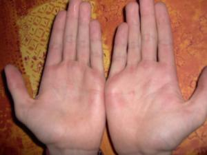 Treatment for blisters on hands