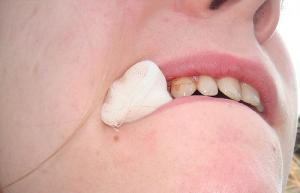 Treatment for dry socket after tooth extraction
