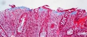 Ulcerative colitis complications