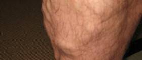 Varicose vein surgery and complications