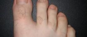 Vinegar treatment for toenail infection