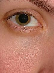 What is retinopathy cure