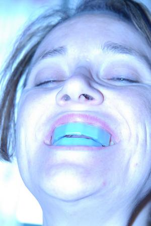 Which teeth whitening system to select?