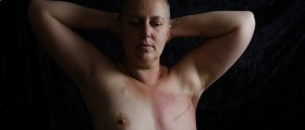 Rebuilding Breasts With Fat After Mastectomy