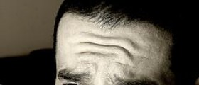 Wrinkles on forehead at young age