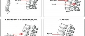 Beware Of Ankylosing Spondylitis : Maybe You Are It's Next Victim
